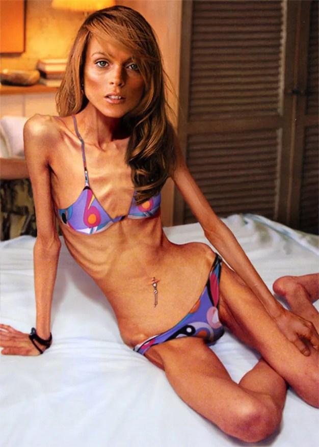 anorexie-mannequin-runway-magazine