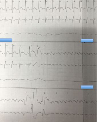 Atrial Flutter After Adenosine