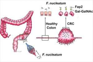 Взаимодействие фузобактерий с толстой кишкой.