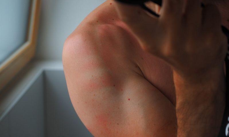 Ночные перекусы повышают риск солнечных ожогов