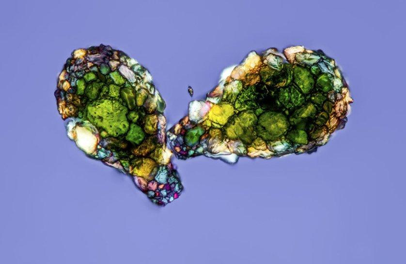 """Снимок """"Раковинные амебы"""" фотографа Герда А. Гюнтера. На фото запечатлены диффлюгии - одноклеточные амебные организмы, строящие свои раковины из песчинок. Снимок покрывает область в 0.9 мм."""