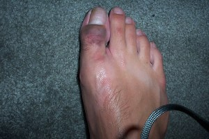 Turf toe is no laughing matter.