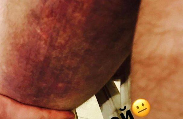 ovechkin-injury