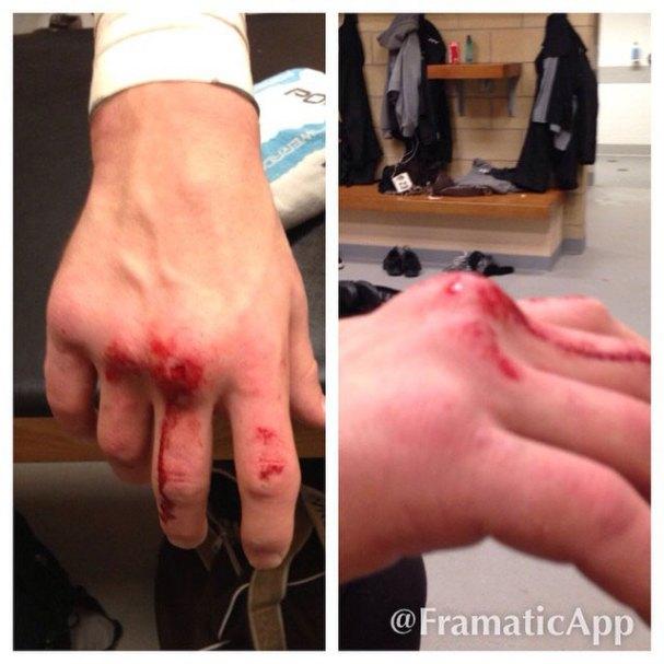 steve-oleksy-swollen-knuckles