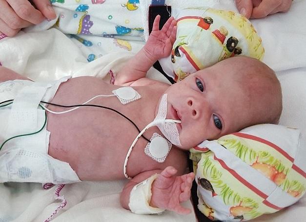 child transplantation