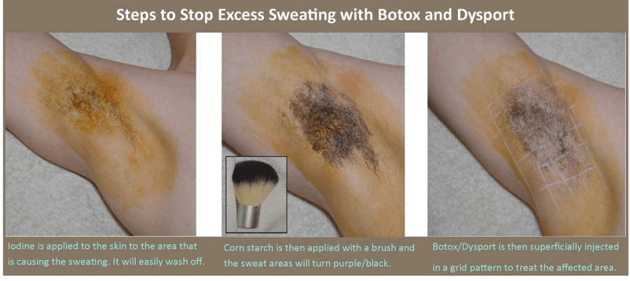 Excessive-Sweating2