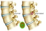 How can a herniated disc heal without surgery?