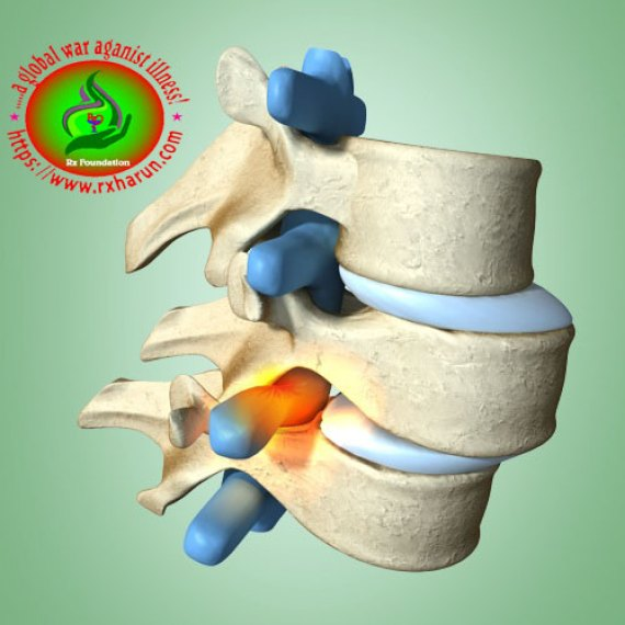 Symptoms of Spondylolisthesis