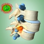 Spondylolisthesis Treatment Exercise Lifestyle