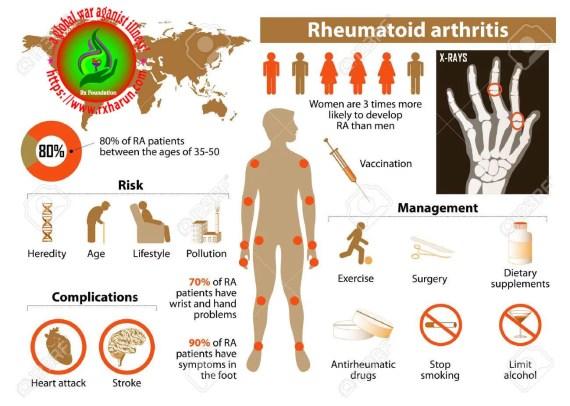 Rheumatoid-arthritis-pathology-overview