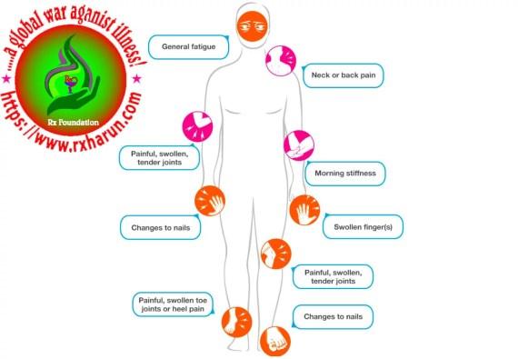 psoriatic arthritis-sygn-symptoms