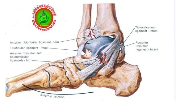 Foot Sprain, Strain