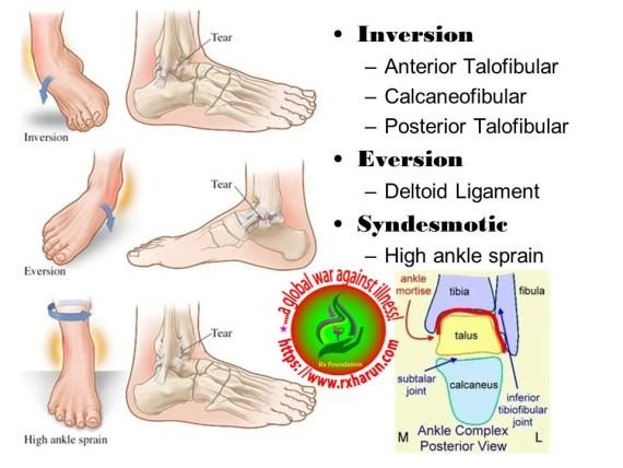 https://rxharun.com/Foot Sprain, Strain