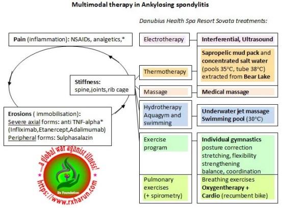 Ankylosing Spondylitis, Ankylosing Spondylitis; Causes, Symptoms, Diagnosis, Treatment,
