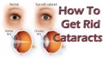 Cataracts Causes, Symptoms, Treatment