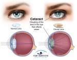 Cataracts, Causes, Symptoms, Diagnosis, Treatment