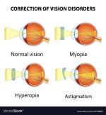 Hyperopia Symptoms, Diagnosis, Treatment