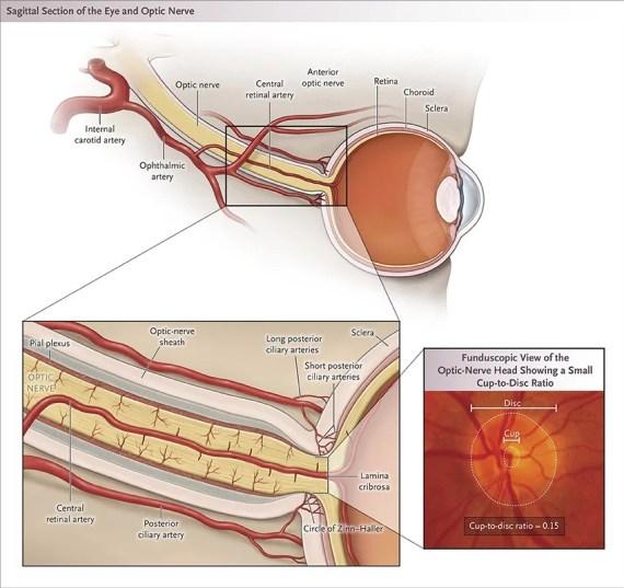 Amblyopia Causes