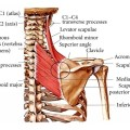 What Is Levator scapulae Muscle?