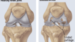 Knee Joints Osteoarthritis – Causes, Symptoms, Treatment