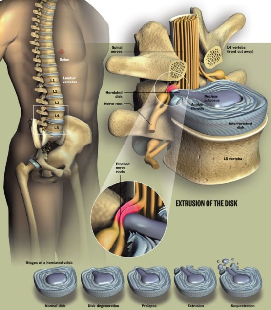 L4 and S1 Disc Herniation, L4 and S1 Disc Herniation – Causes, Symptoms, Treatment,
