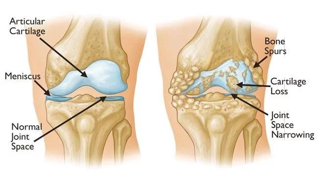 Treatment Of Knee Joints Osteoarthritis