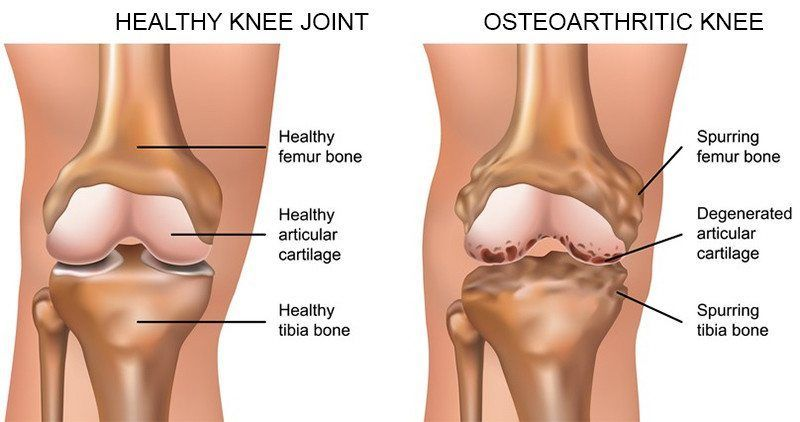 Test Diagnosis Of Knee Osteoarthritis