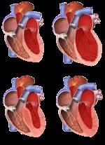 Ischemic Cardiomyopathy – Causes, Symptoms, Treatment