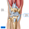 Posterior Cruciate Ligament Injury (PCL) is one of the four major ligaments of the knee joint that functions to stabilize the tibia on the femur. It originates from the anterolateral
