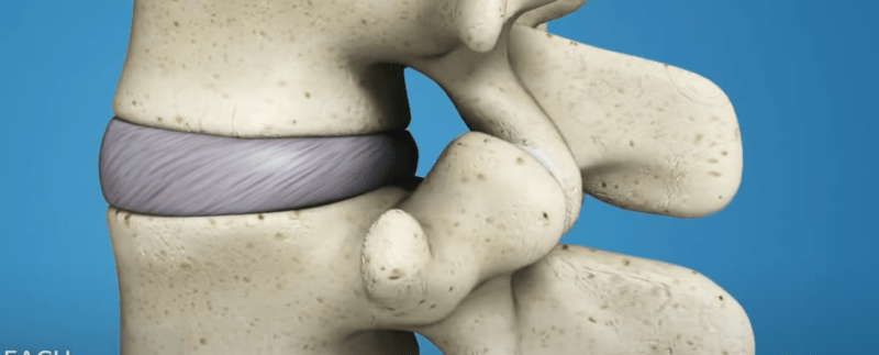 Post Surgical Back Pain