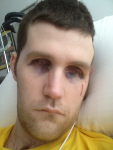 Ryan right after tarsorrhaphy surgery last year.