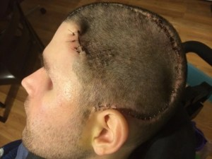 Ryan's scalp is stapled following surgery to remove a defective skull plate.