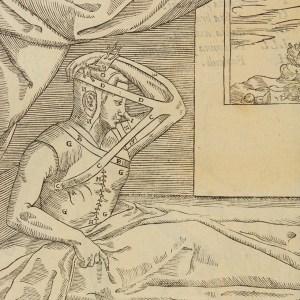 Tagliacozzi, De Curtrorum chirurgia, 1597. [Parkinson Collection 2390]
