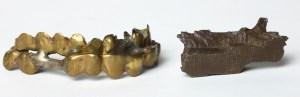 Teeth shield and shrapnel
