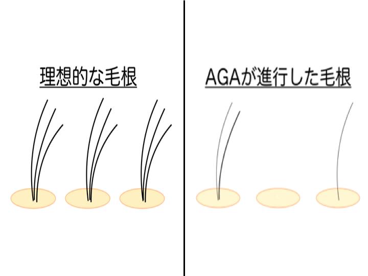 AGAの毛根症例