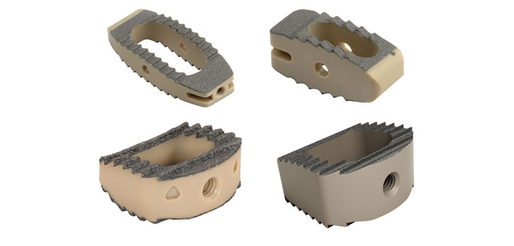 Medtronic Venture Anterior Cervical Plate