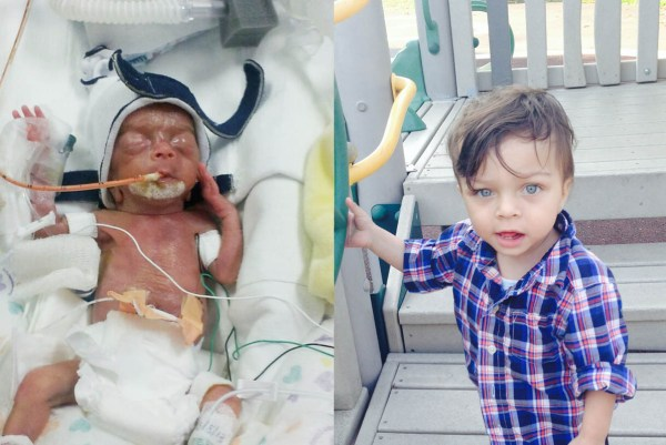 Meet 51 Babies Who Were Born Too Soon And See How Far