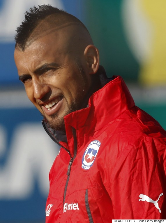 Arturo Vidal S Haircut Is Certainly One Of A Kind