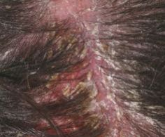1000 images about scabs and scabbing on pinterest scalp treatments yellow and tight braids