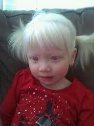 albino children white hair white eyelashes red eyes albinism albinism in children albino