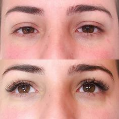 Eyelash Extensions Before And After Have No Eye Makeup