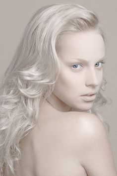 1000 images about albino on pinterest albino model albinism and stephen thompson