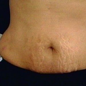 Natural cure for Stretch Marks: warm olive oil: restores blood circulation causi