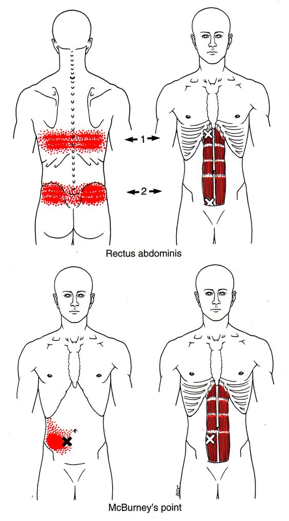 Trigger points, Referred pain and Pain d'epices on Pinterest