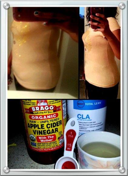 Image result for apple cider vinegar bloating