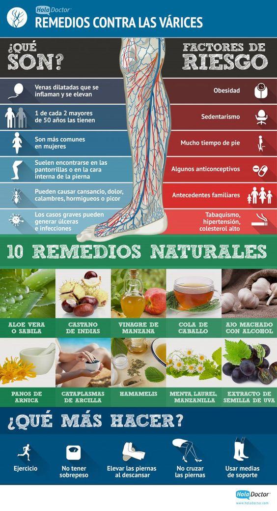 ¿Qué son las varices y cómo se pueden combatir? #remedios #varices #infografía: