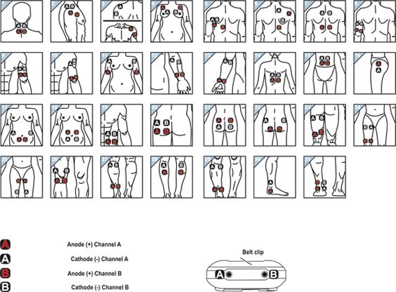 Electrode Pad Placement Chart | Click to enlarge ...