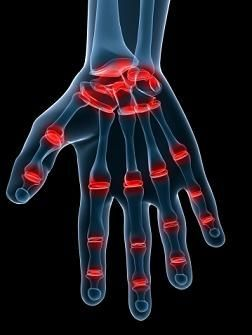 Rheumatoid Arthritis Pain at Night: