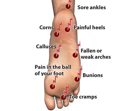 Toe pain/numbness during and after run: probably from ...