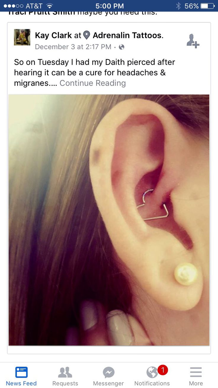 Daith Piercing Helps To Relieve Chronic Headaches